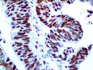 IHC of MCM3 on an FFPE Colon Carcinoma Tissue