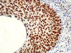 IHC of MCM5 on an FFPE Cervical Cancer Tissue