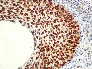 IHC of MCM5 on an FFPE Cervical Cancer Tissue
