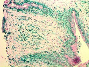 IHC of NGFR on an FFPE Breast Fibroadenoma Tissue