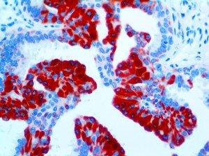 TAG72-40X-2VDJ03-4-2 Breast Carcinoma