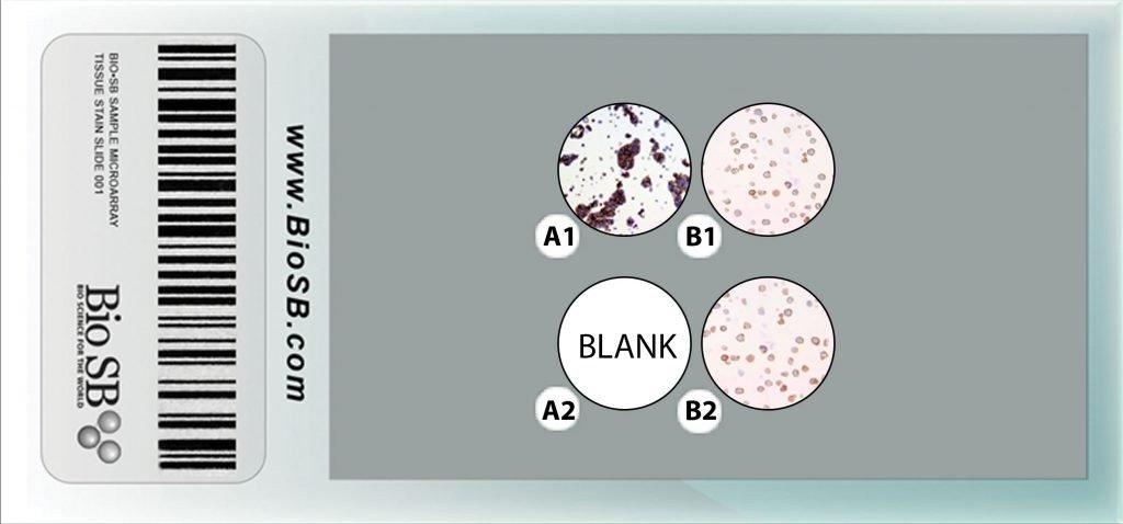 3 Core ALK-1 Cell Line Microarray clma