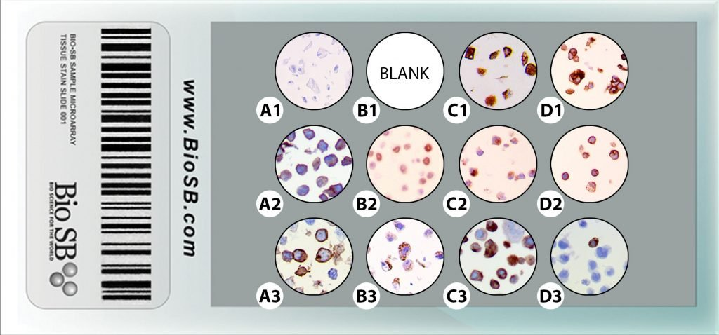 11 Core Immunotherapy Cell Line Microarray clma