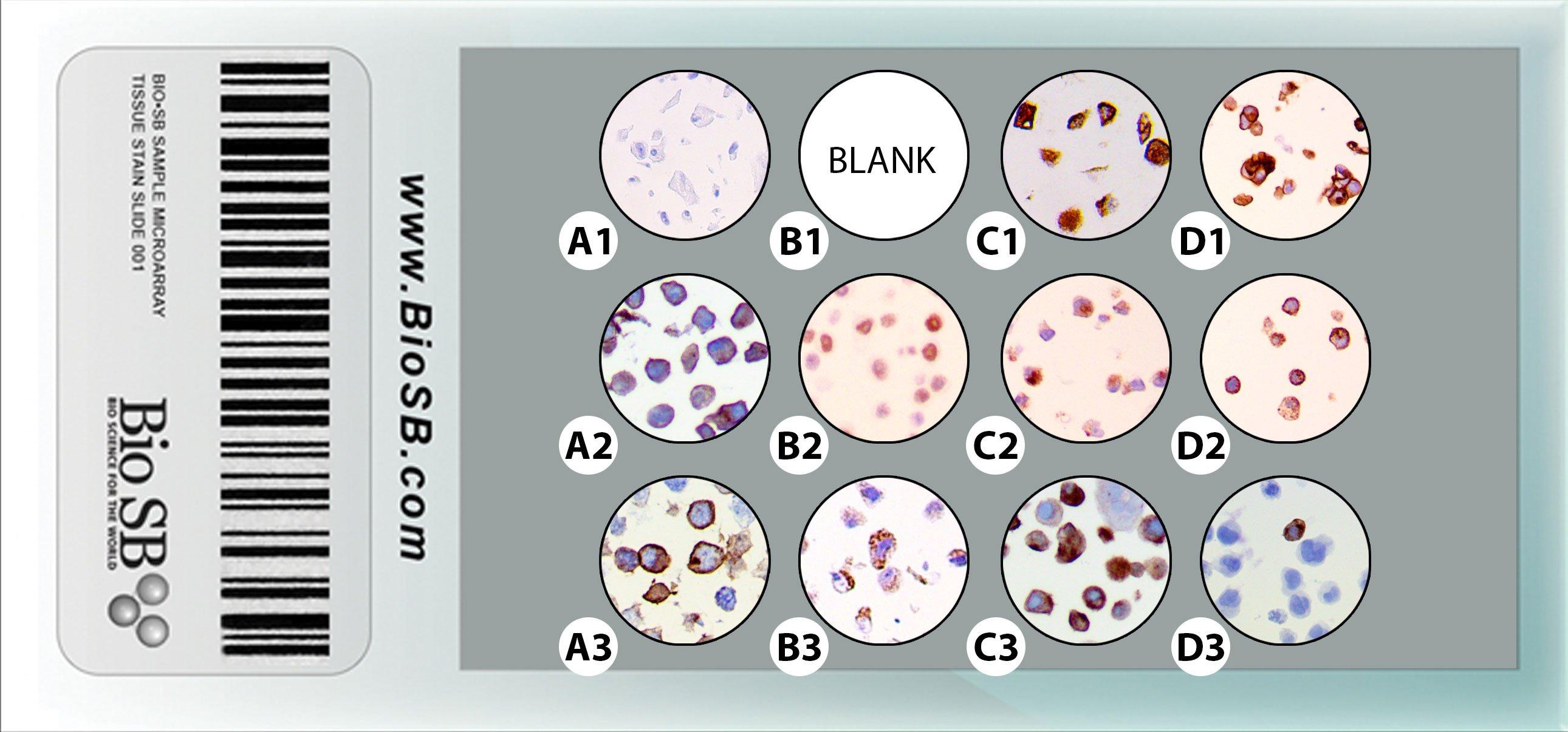Cancer Human Cell Line Microarrays Bio Sb