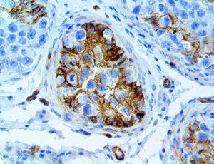 CD146 anti-cd146 MUC18 muc-18 anti-muc18 Mel-CAM melcam mel camanti-mel-cam antibody immunohistochemistry ihc