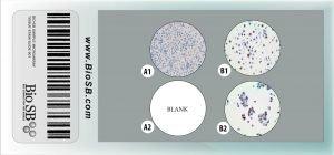 3 Core Androgen Receptor Cell Line Microarray clma